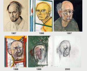 Autoritratti di William Utermohlen: il declino artistico a causa della malattia